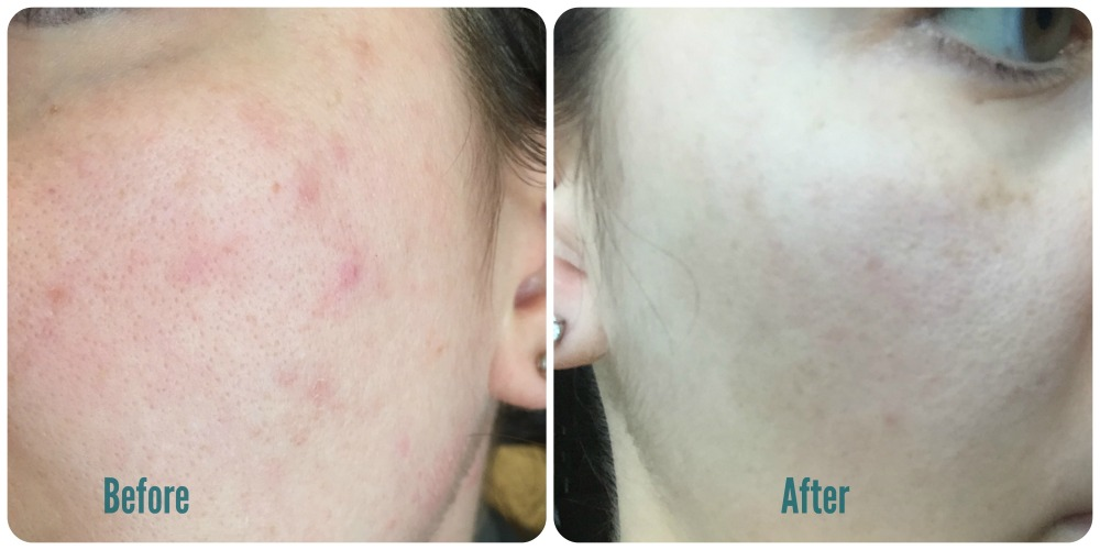 Left: While using traditional skin care methods. Right: After using only micellar water.